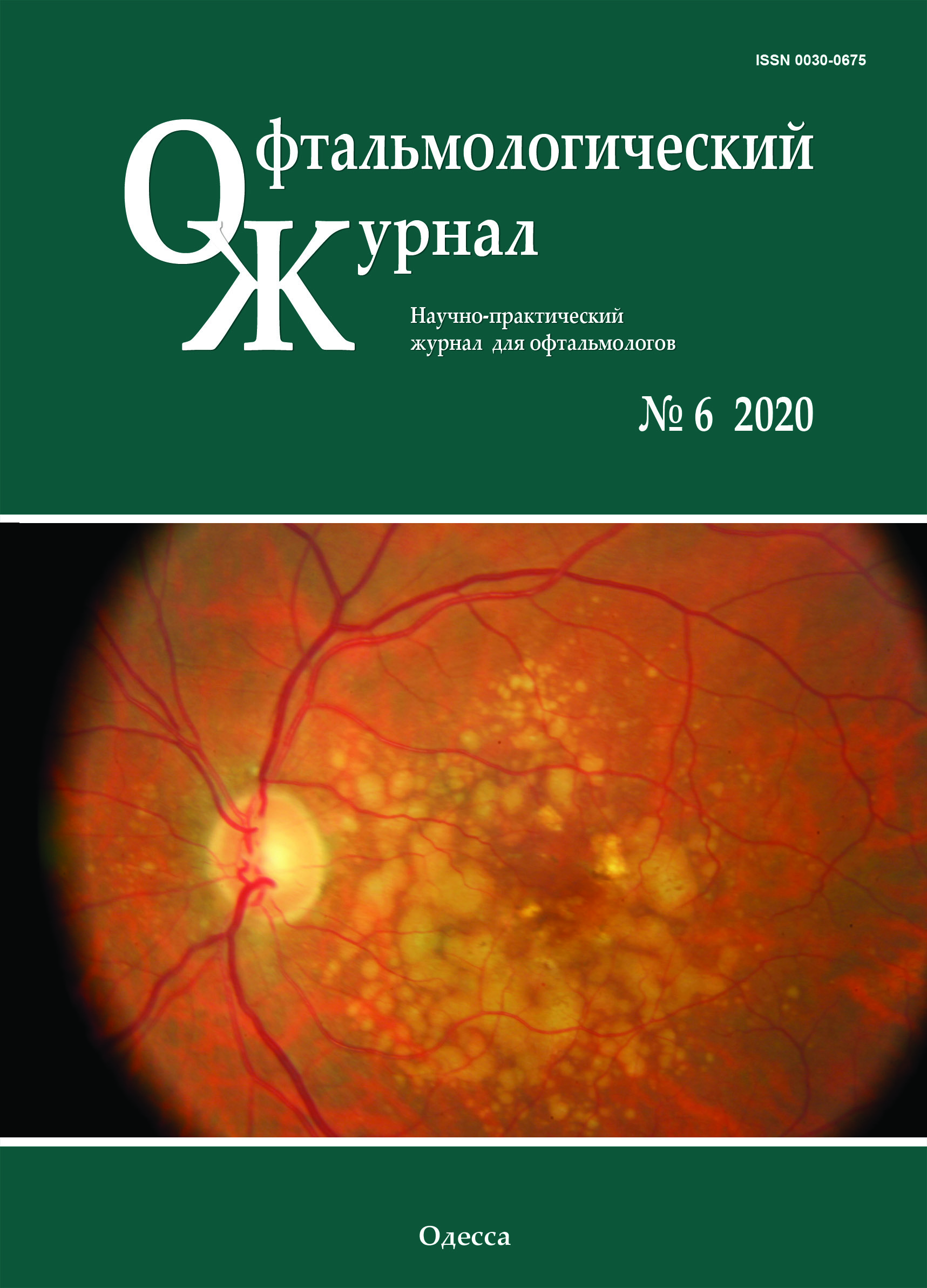 View No. 6 (2020): Journal of Ophthalmology (Ukraine)